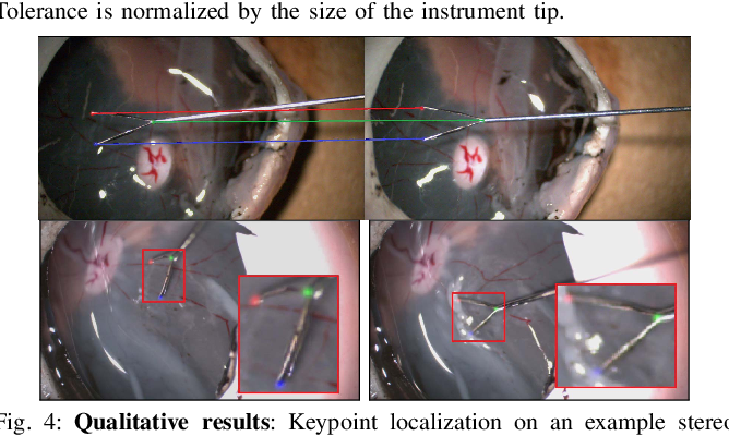 Figure 4 for Automatic Tool Landmark Detection for Stereo Vision in Robot-Assisted Retinal Surgery