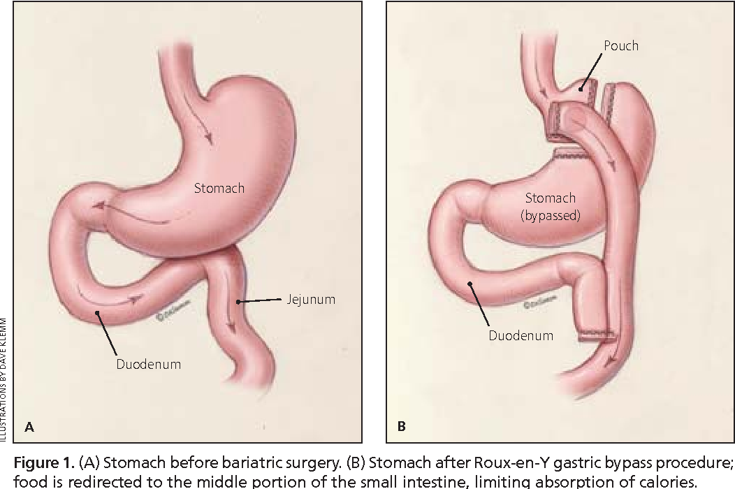 Figure 1 from Caring for patients after bariatric surgery ...