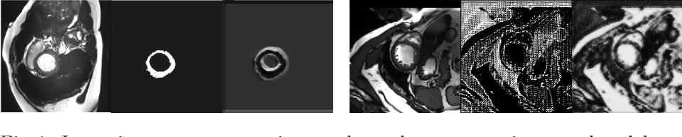 Figure 1 for Factorised spatial representation learning: application in semi-supervised myocardial segmentation