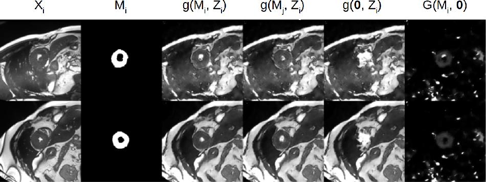 Figure 4 for Factorised spatial representation learning: application in semi-supervised myocardial segmentation