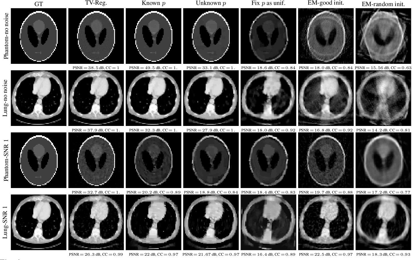 Figure 4 for UVTomo-GAN: An adversarial learning based approach for unknown view X-ray tomographic reconstruction