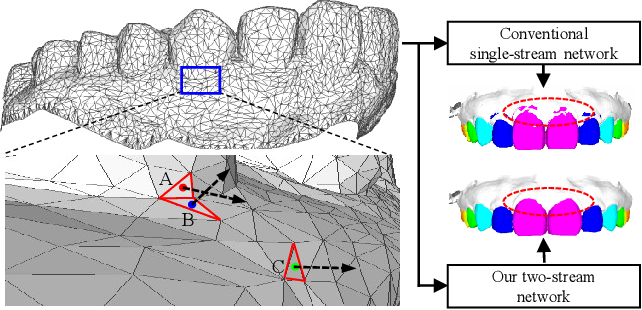 Figure 1 for TSGCNet: Discriminative Geometric Feature Learning with Two-Stream GraphConvolutional Network for 3D Dental Model Segmentation