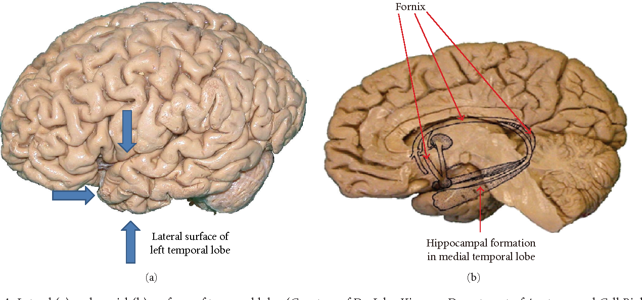 Role Of Functional Mri In Presurgical Evaluation Of Memory Function