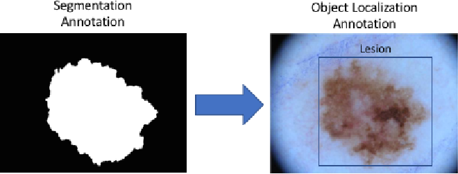 Figure 1 for Region of Interest Detection in Dermoscopic Images for Natural Data-augmentation