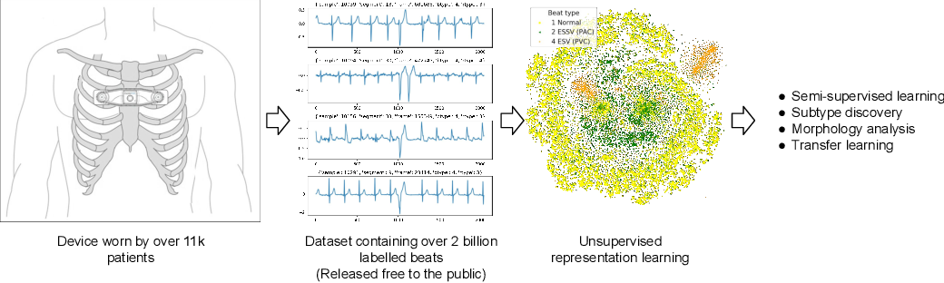 Figure 1 for Icentia11K: An Unsupervised Representation Learning Dataset for Arrhythmia Subtype Discovery