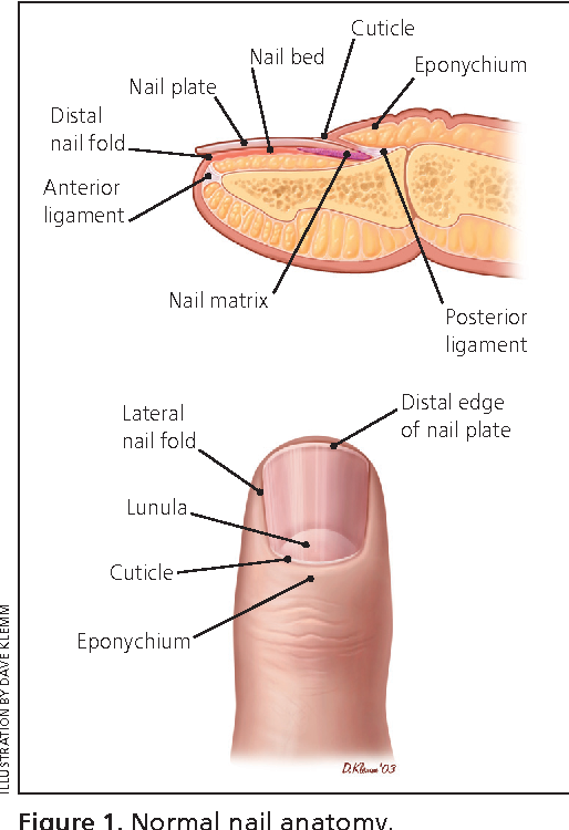 Figure 7 From Evaluation Of Nail Abnormalities Semantic Scholar