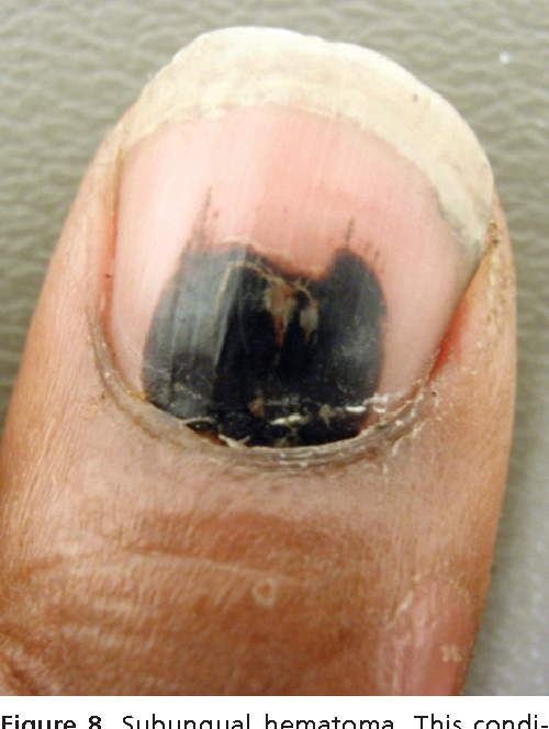Figure 8 from Evaluation of nail abnormalities. - Semantic Scholar