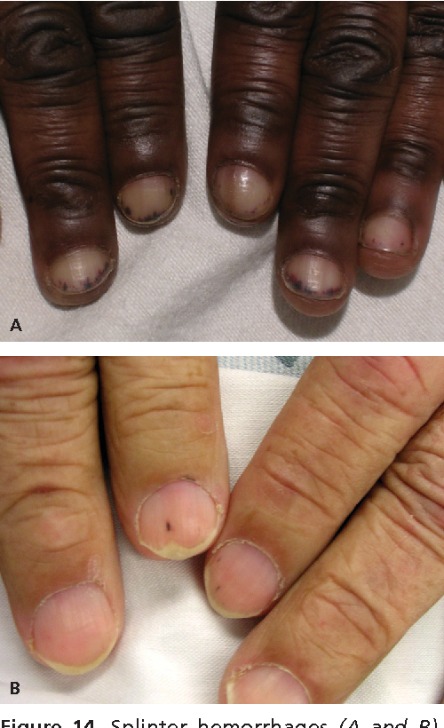 Figure 14 from Evaluation of nail abnormalities. - Semantic Scholar