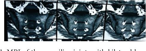 Figure 1: MRI of the sacroiliac joints with bilateral bone marrow edema.