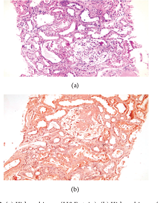 Figure 2: (a) Kidney biopsy (H&E stain). (b) Kidney biopsy (Congo red stain).