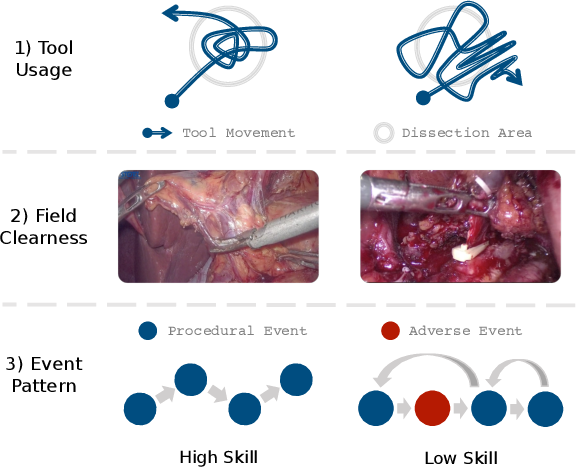 Figure 1 for Towards Unified Surgical Skill Assessment