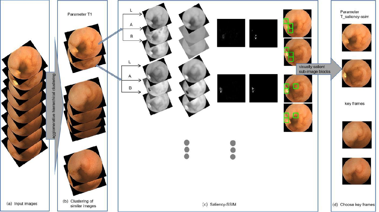 Figure 1 for Application of Structural Similarity Analysis of Visually Salient Areas and Hierarchical Clustering in the Screening of Similar Wireless Capsule Endoscopic Images