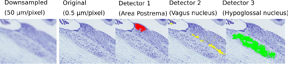 Figure 1 for The Active Atlas: Combining 3D Anatomical Models with Texture Detectors