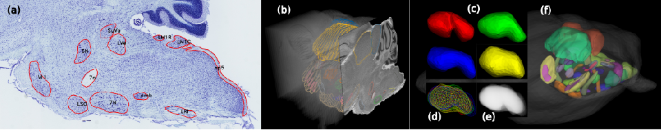 Figure 3 for The Active Atlas: Combining 3D Anatomical Models with Texture Detectors