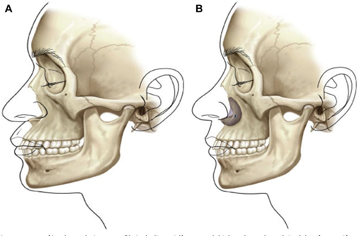 Pyriform Aperture Augmentation As An Adjunct To Rhinoplasty