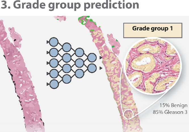 Figure 1 for Automated Gleason Grading of Prostate Biopsies using Deep Learning