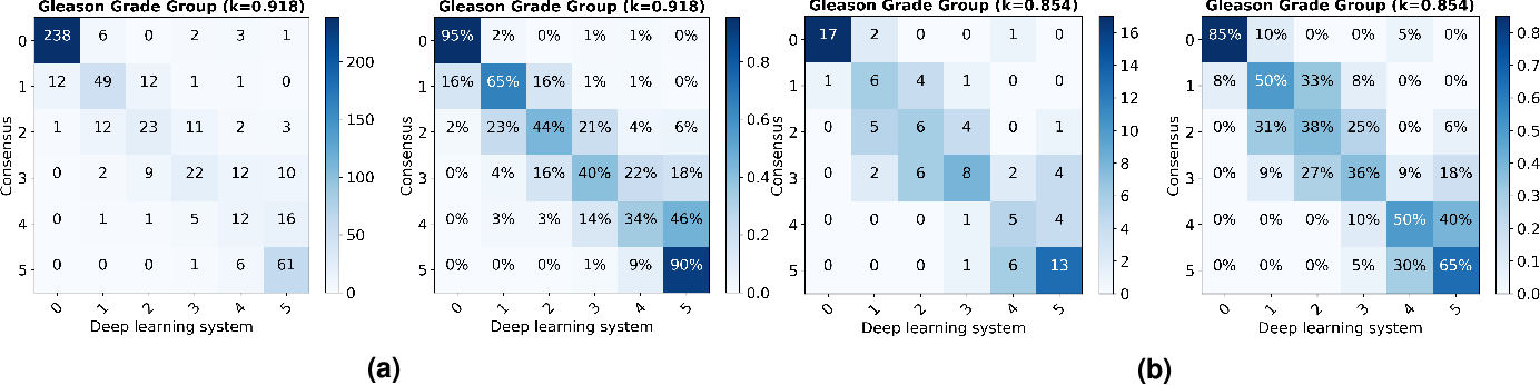 Figure 2 for Automated Gleason Grading of Prostate Biopsies using Deep Learning