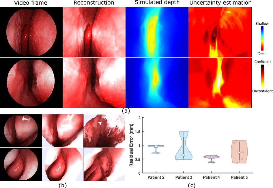 Figure 2 for Self-supervised Dense 3D Reconstruction from Monocular Endoscopic Video