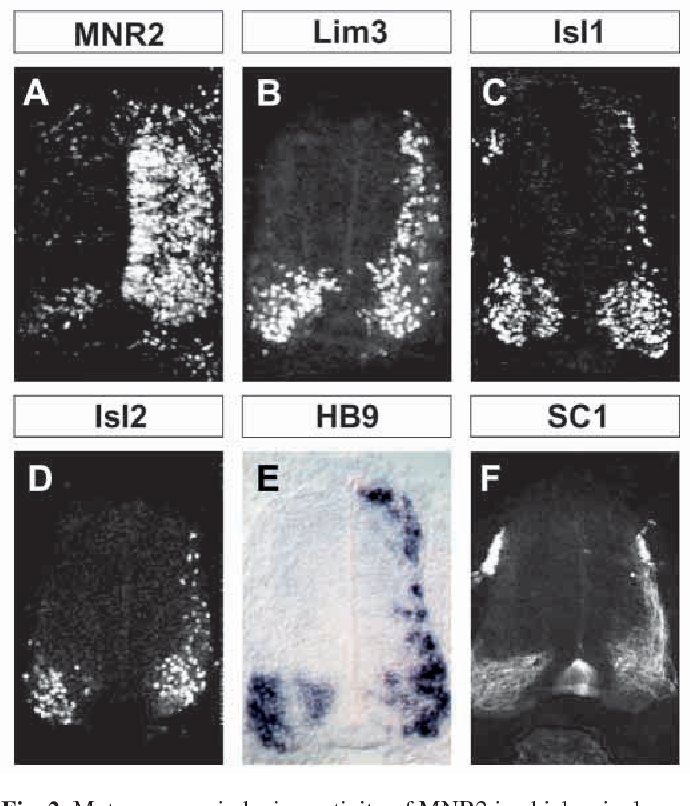 Fig. 2. Motor neuron inducing activity of MNR2 in chick spinal cord. (A) Widespread unilateral expression of MNR2 in stage 24 chick spinal cord, obtained by unilateral (right side) in ovo electroporation at stages 10-12. (B-F) Ectopic dorsal expression, after MNR2 electroporation, of Lim3 (B), Isl1 (C), Isl2 (D), HB9 (E) and SC1 (F). Images are representative of more than 40 electroporated embryos.