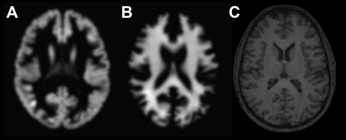 Figure 1 for Predicting brain age with deep learning from raw imaging data results in a reliable and heritable biomarker