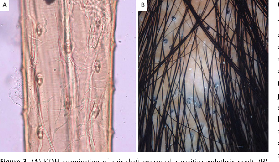 Figure 3. (A) KOH examination of hair shaft presented a positive endothrix result. (B) Dermoscopic examination revealed comma hair sign and large amount of corkscrew hair. [Copyright: ©2015 Sombatmaithai et al.]