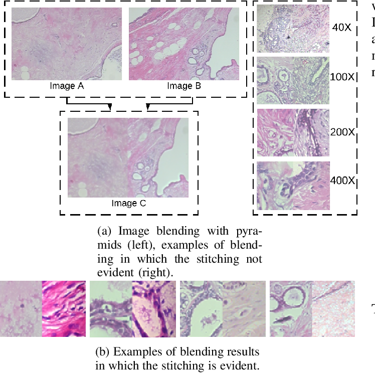 Figure 4 for Data Augmentation for Histopathological Images Based on Gaussian-Laplacian Pyramid Blending