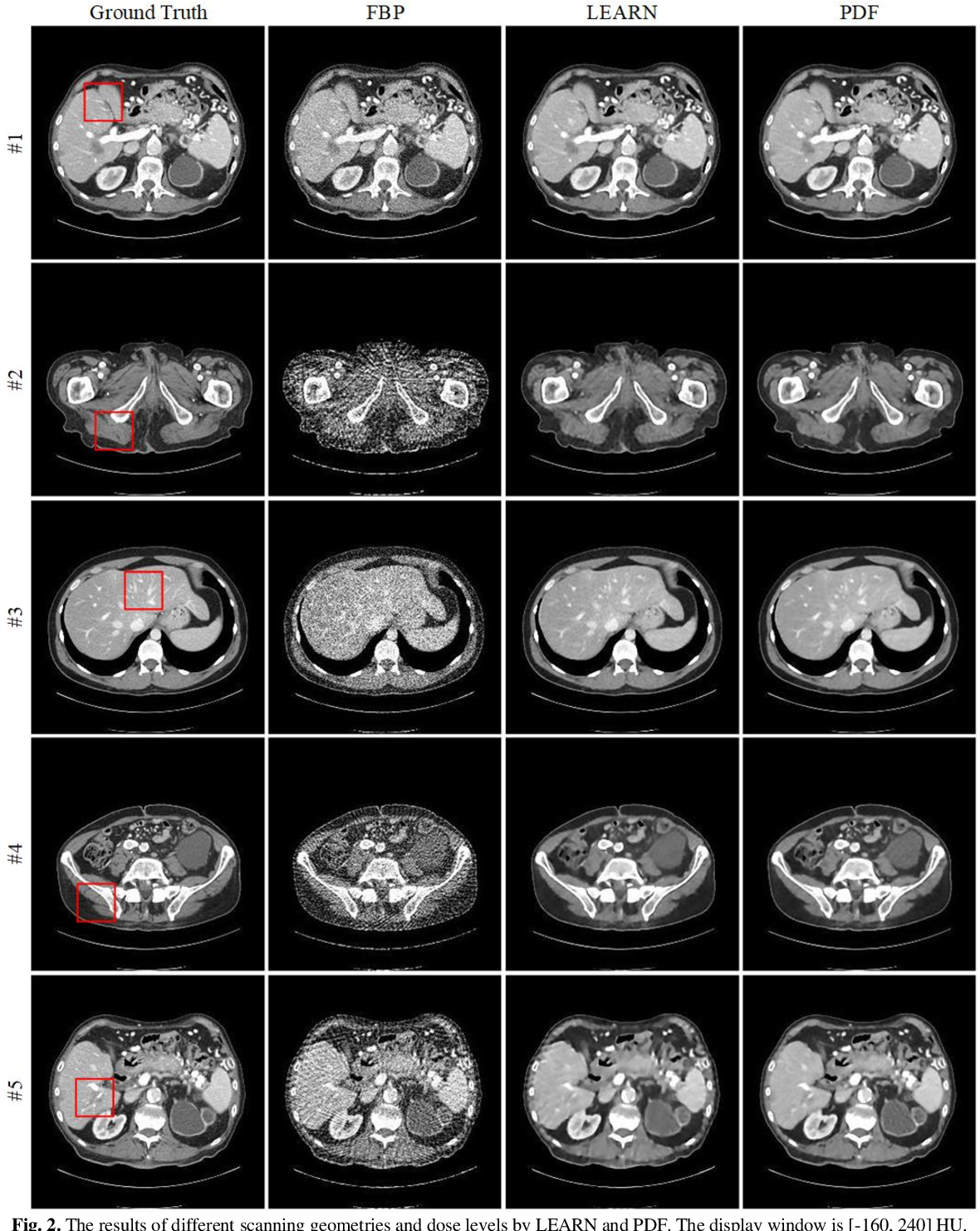 Figure 2 for CT Reconstruction with PDF: Parameter-Dependent Framework for Multiple Scanning Geometries and Dose Levels