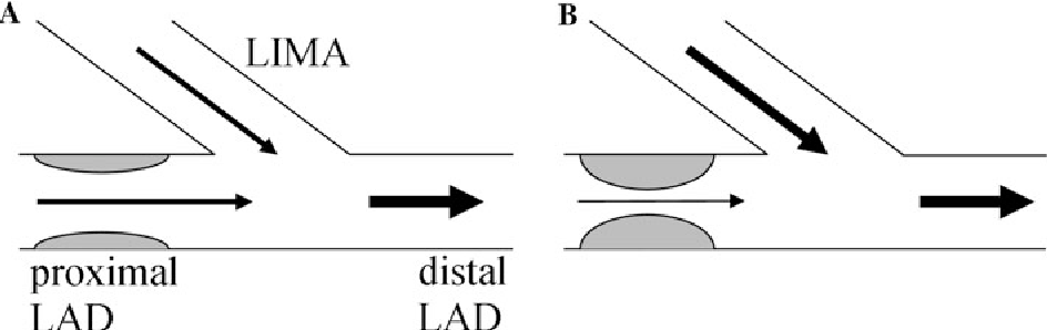 effect of the degree of lad stenosis on competitive flow and flow
