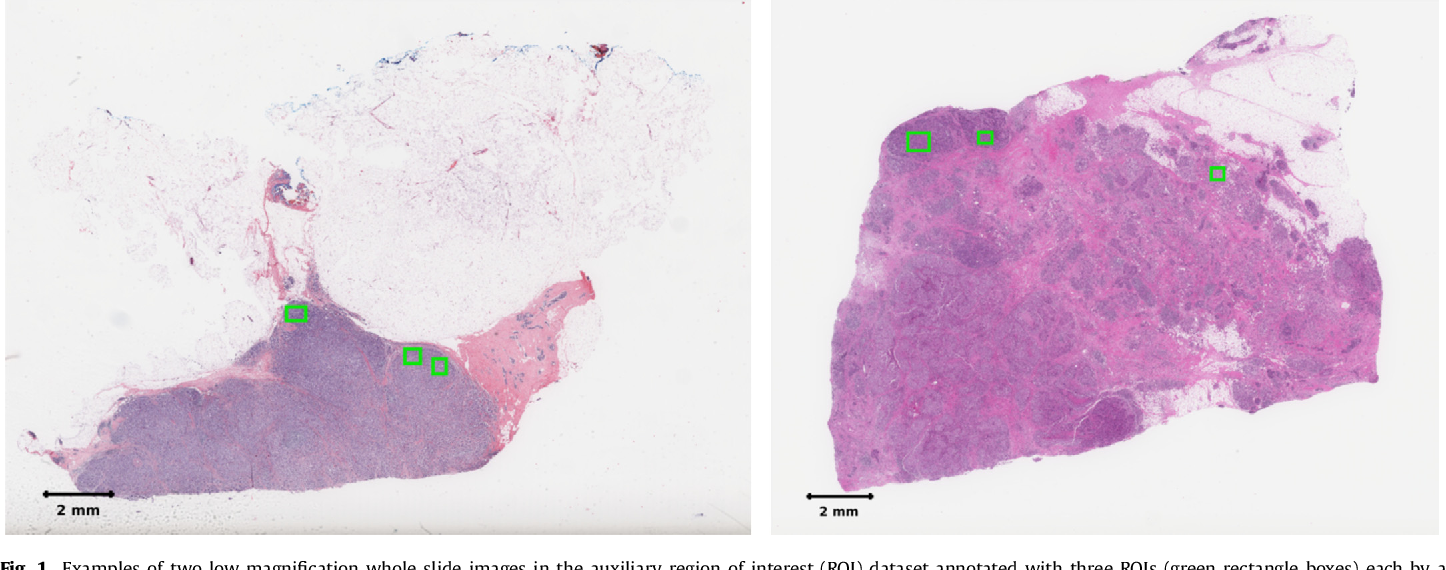 Figure 2 for Predicting breast tumor proliferation from whole-slide images: the TUPAC16 challenge