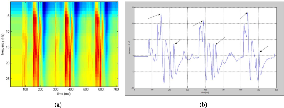 Figure 1 for Detection and Analysis of Emotion From Speech Signals