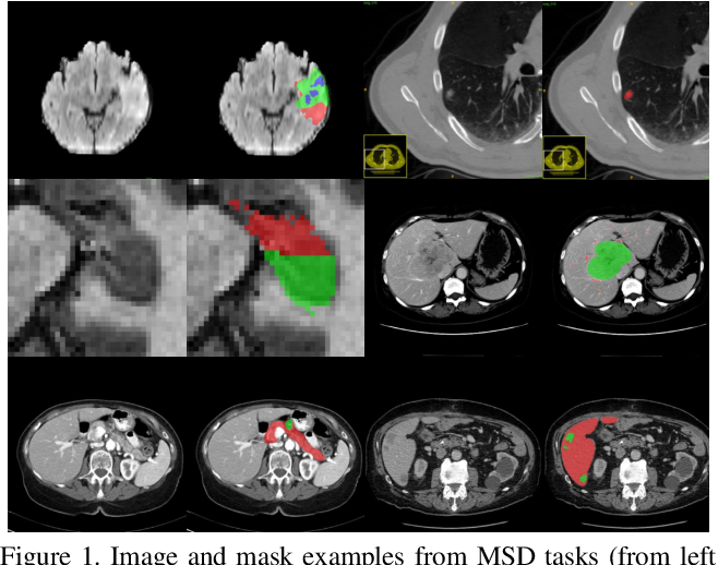 Figure 1 for C2FNAS: Coarse-to-Fine Neural Architecture Search for 3D Medical Image Segmentation