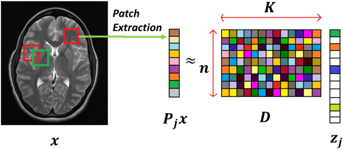 Figure 2 for Image Reconstruction: From Sparsity to Data-adaptive Methods and Machine Learning