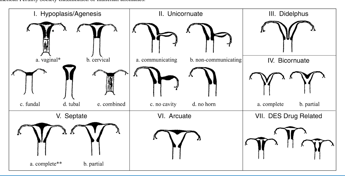Hysteroscopic Metroplasty For The Septate Uterus Review And Meta