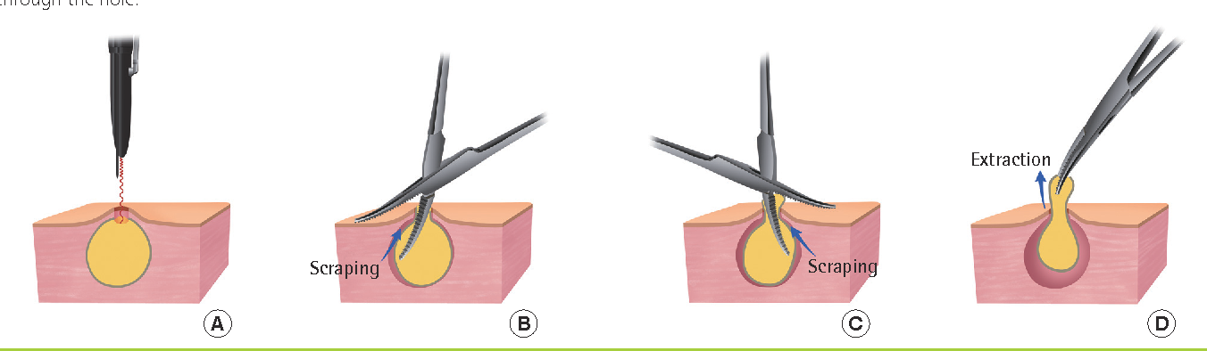 Diagram Of A Cyst - Today Wiring Schematic Diagram