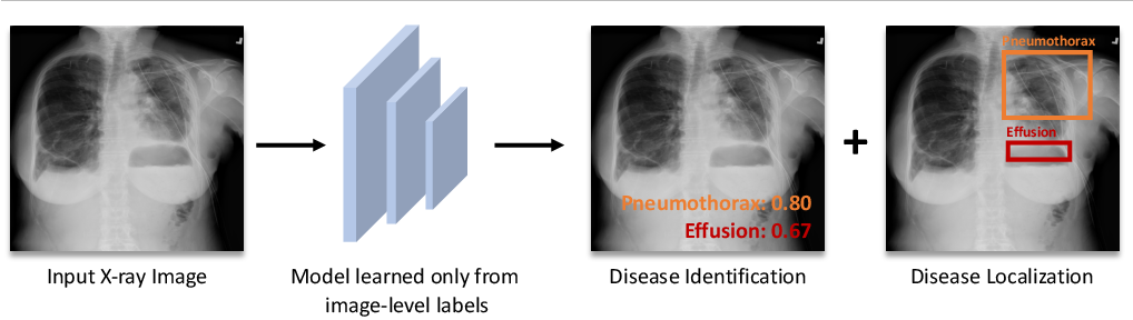 Figure 1 for Thoracic Disease Identification and Localization using Distance Learning and Region Verification