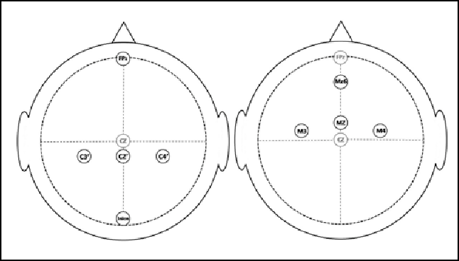 Figure 1: Electrode placement for somatosensory and motor evoked potentials.