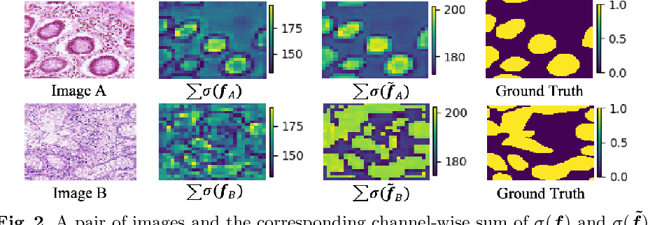 Figure 3 for Pairwise Relation Learning for Semi-supervised Gland Segmentation