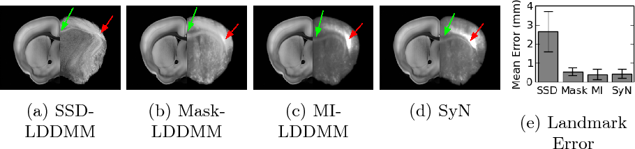 Figure 3 for A Large Deformation Diffeomorphic Approach to Registration of CLARITY Images via Mutual Information