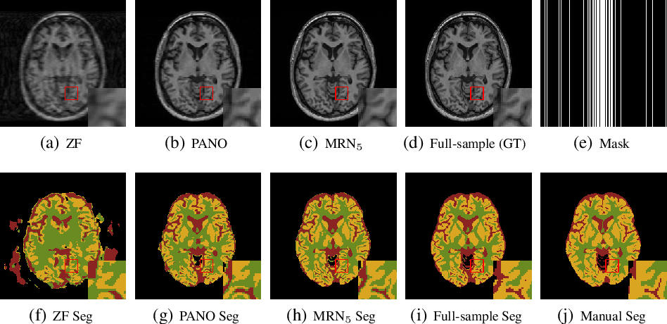 Figure 3 for Joint CS-MRI Reconstruction and Segmentation with a Unified Deep Network