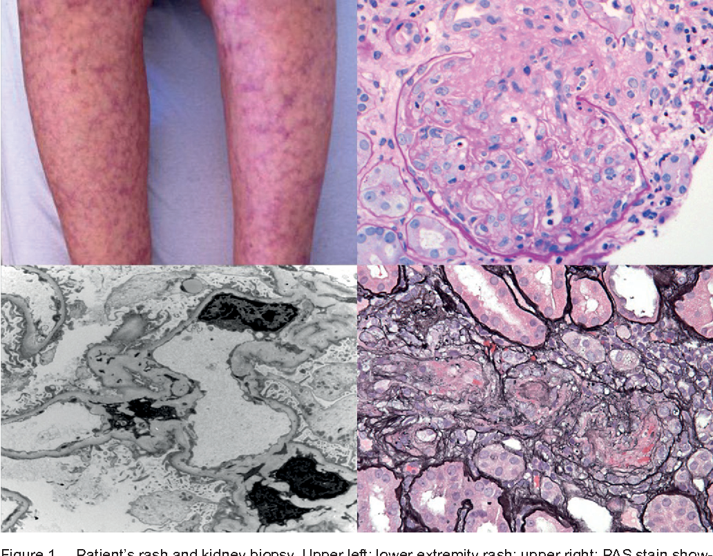 Figure 1 from A case report of paraproteinemia-associated