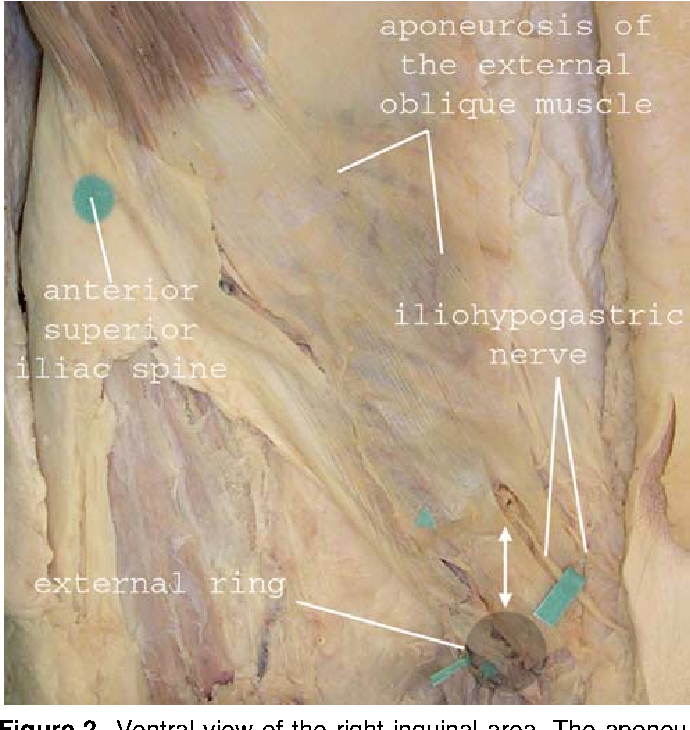 Nerve-Identifying Inguinal Hernia Repair: A Surgical Anatomical ...