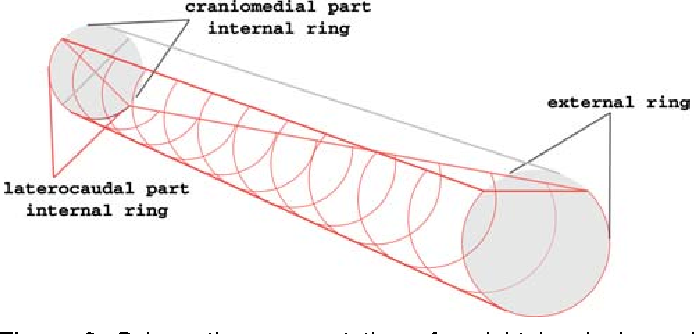 schematic representation of a right inguinal canal and the course of the  genital