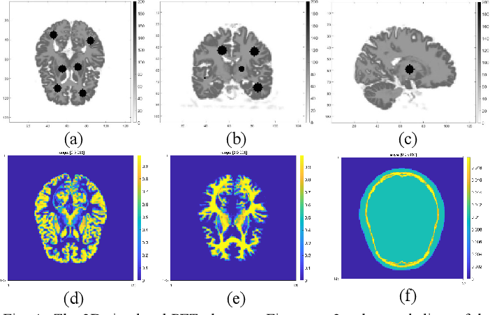Figure 4 for Penalized-likelihood PET Image Reconstruction Using 3D Structural Convolutional Sparse Coding