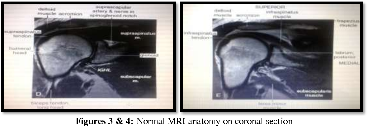 Mri Evaluation Of Shoulder Joint Normal Anatomy Pathological