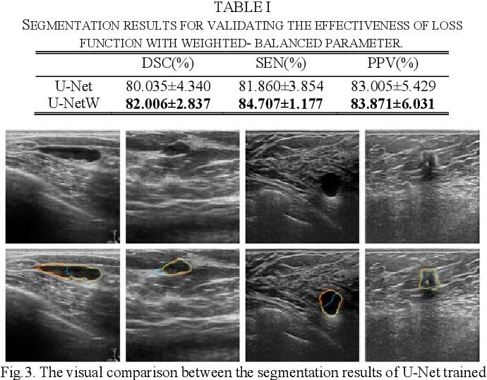 Figure 1 for CF2-Net: Coarse-to-Fine Fusion Convolutional Network for Breast Ultrasound Image Segmentation