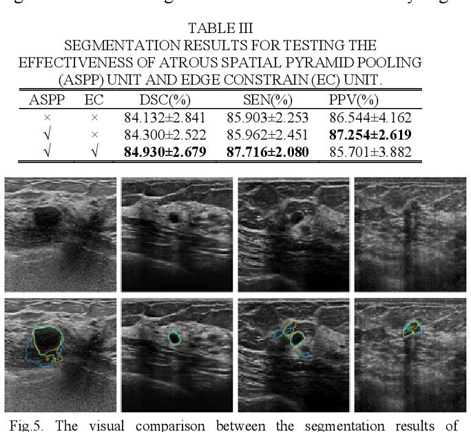 Figure 3 for CF2-Net: Coarse-to-Fine Fusion Convolutional Network for Breast Ultrasound Image Segmentation