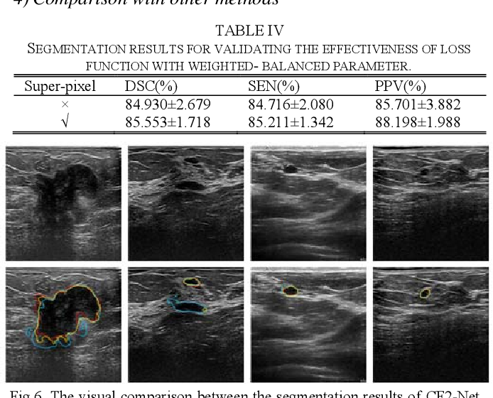 Figure 4 for CF2-Net: Coarse-to-Fine Fusion Convolutional Network for Breast Ultrasound Image Segmentation