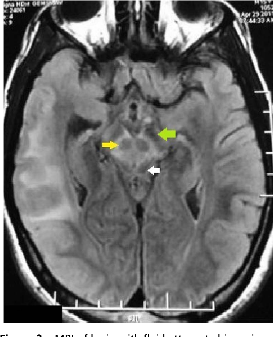 Figure 2 from Classic neuroimaging, the bird\'s eye view in Wilson\'s ...