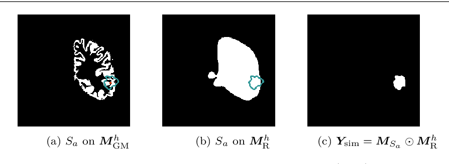 Figure 1 for A self-supervised learning strategy for postoperative brain cavity segmentation simulating resections