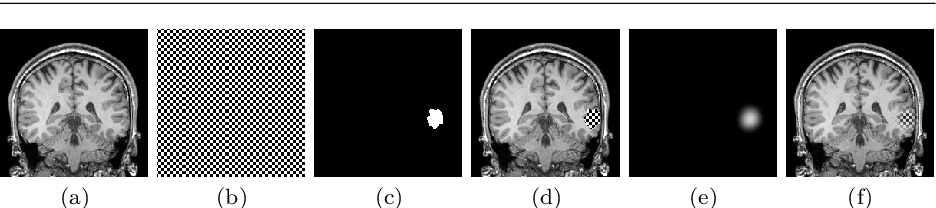 Figure 2 for A self-supervised learning strategy for postoperative brain cavity segmentation simulating resections